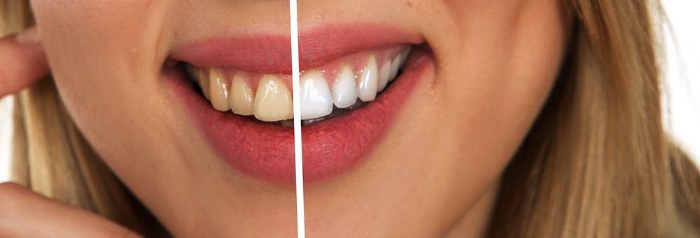 Tandläkarbesöket är en hälsoinvestering
